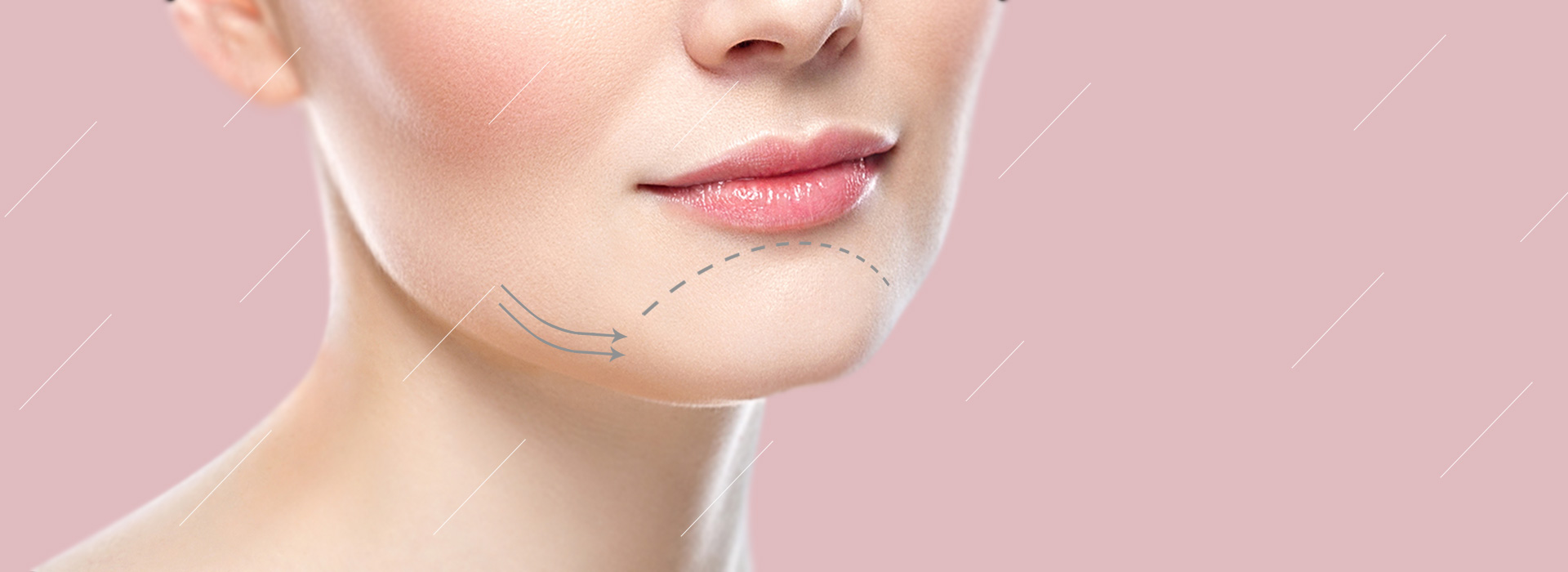 Chin Augmentation in Iran