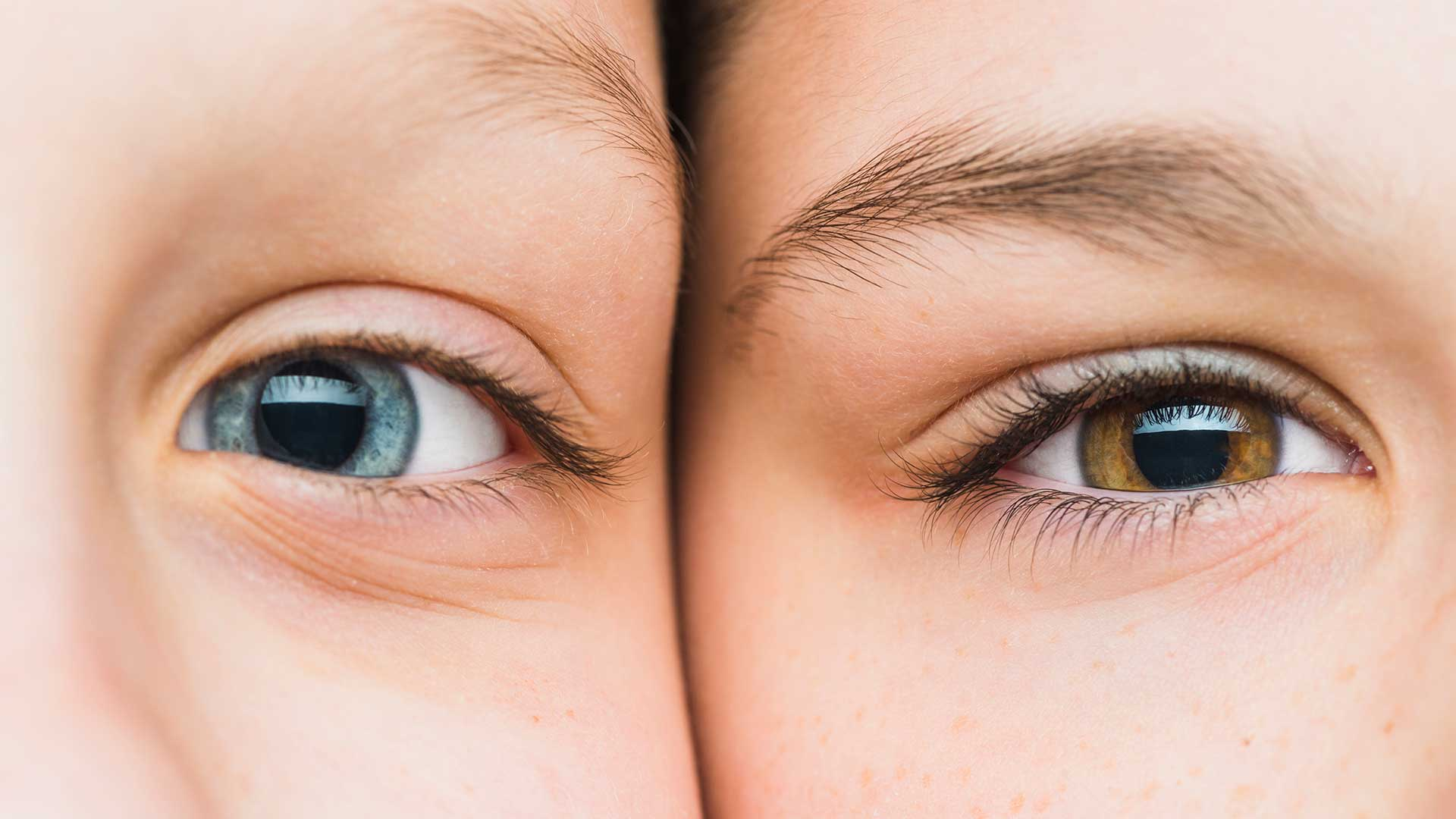Permanently Eye Color Change in Iran