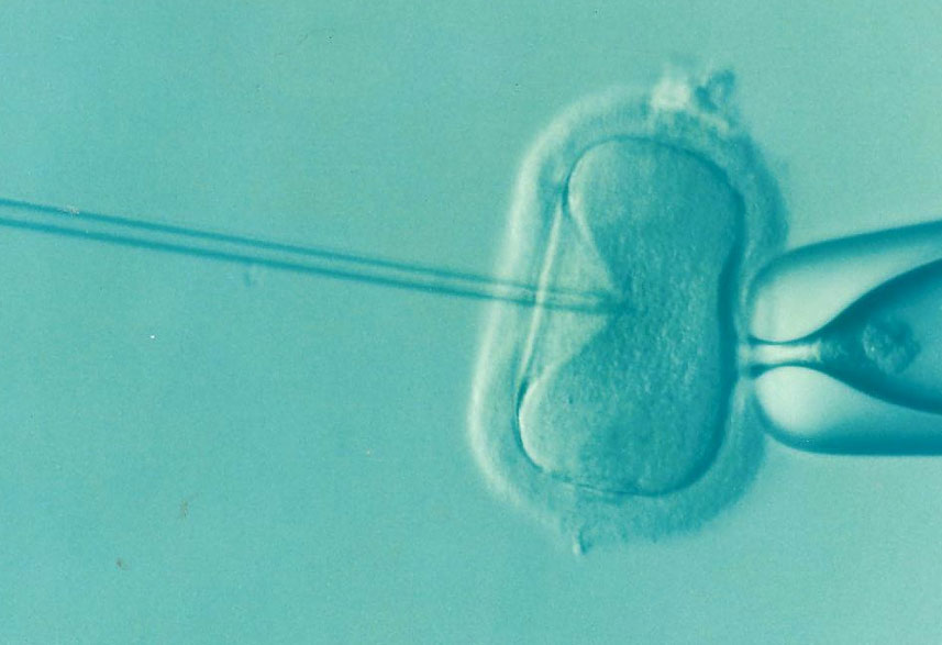 Controversial new test could be used to screen embryos for intelligence
