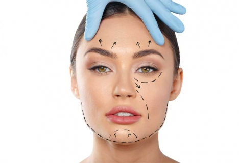 Face lift treatment in Iran