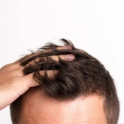 Hair Transplantation approach and treatment in Iran