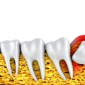 The safest and fastest approach in wisdom tooth extraction In Iran