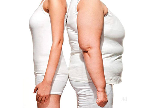 Sleeve surgery-Surgical wight loss treatment