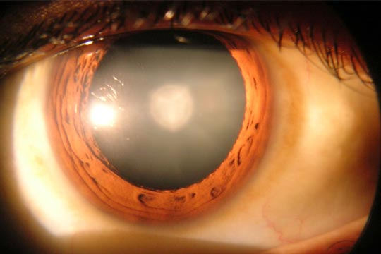 Cataract laser assisted surgery