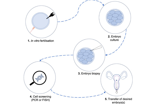 PGD and Gender selection (Pre-implantation diagnosis) in Iran