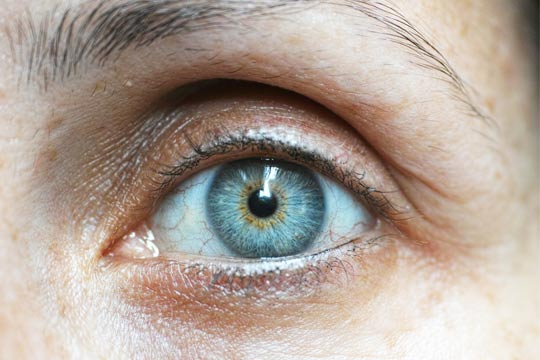 KAMRA Corneal Inlay in Iran - Patient eligibility