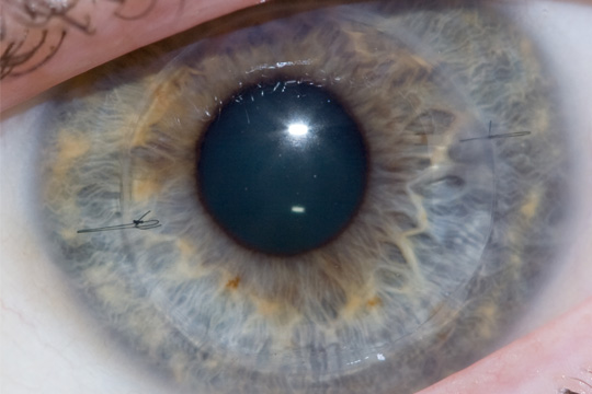 Corneal Transplantation procedures in Iran